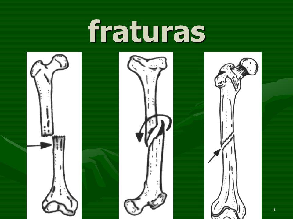 5 fraturas