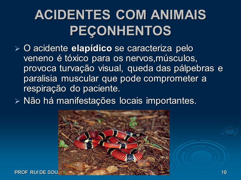 PROF RUI DE SOUZA10 ACIDENTES COM ANIMAIS PEÇONHENTOS O acidente elapídico se caracteriza pelo veneno é tóxico para os nervos,músculos, provoca turvaç