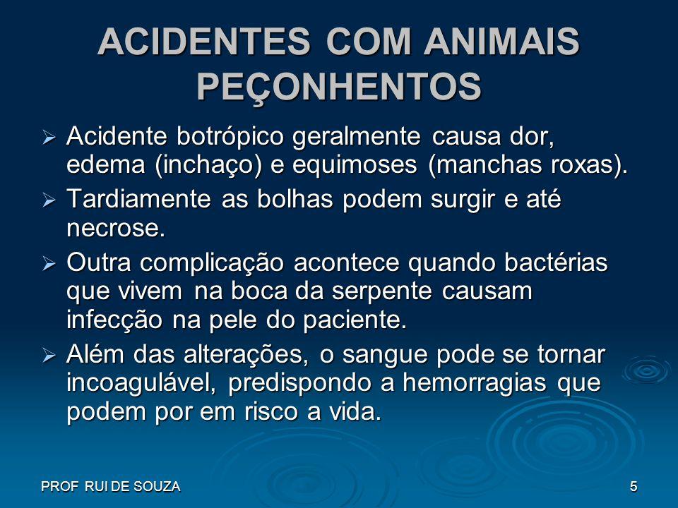 PROF RUI DE SOUZA5 ACIDENTES COM ANIMAIS PEÇONHENTOS Acidente botrópico geralmente causa dor, edema (inchaço) e equimoses (manchas roxas). Acidente bo