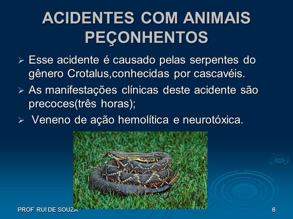 PROF RUI DE SOUZA6 ACIDENTES COM ANIMAIS PEÇONHENTOS Esse acidente é causado pelas serpentes do gênero Crotalus,conhecidas por cascavéis. Esse acident
