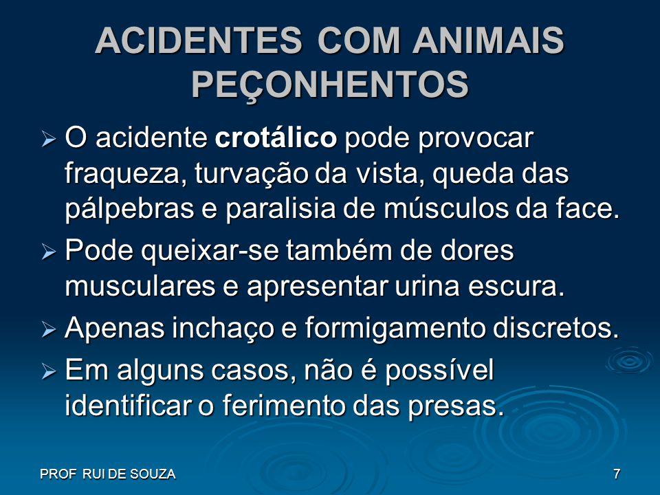 PROF RUI DE SOUZA7 ACIDENTES COM ANIMAIS PEÇONHENTOS O acidente crotálico pode provocar fraqueza, turvação da vista, queda das pálpebras e paralisia d