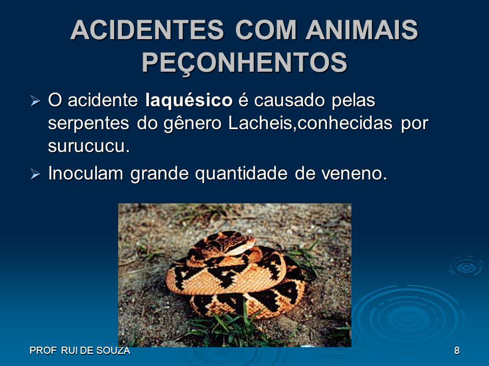 PROF RUI DE SOUZA8 ACIDENTES COM ANIMAIS PEÇONHENTOS O acidente laquésico é causado pelas serpentes do gênero Lacheis,conhecidas por surucucu. O acide