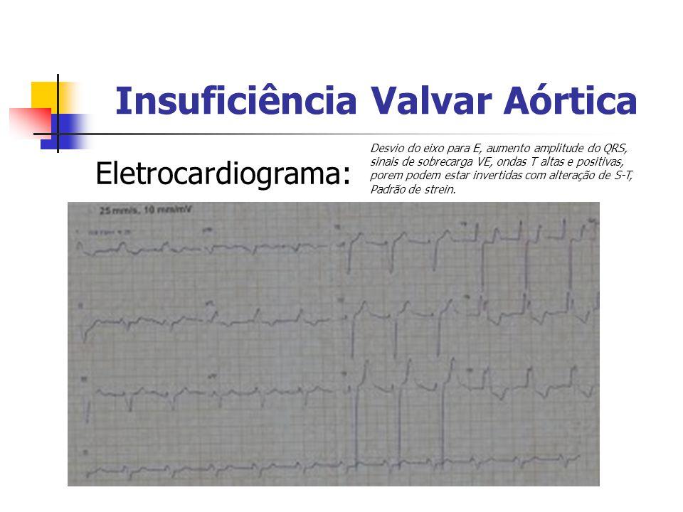 Insuficiência Valvar Aórtica Eletrocardiograma: Desvio do eixo para E, aumento amplitude do QRS, sinais de sobrecarga VE, ondas T altas e positivas, p