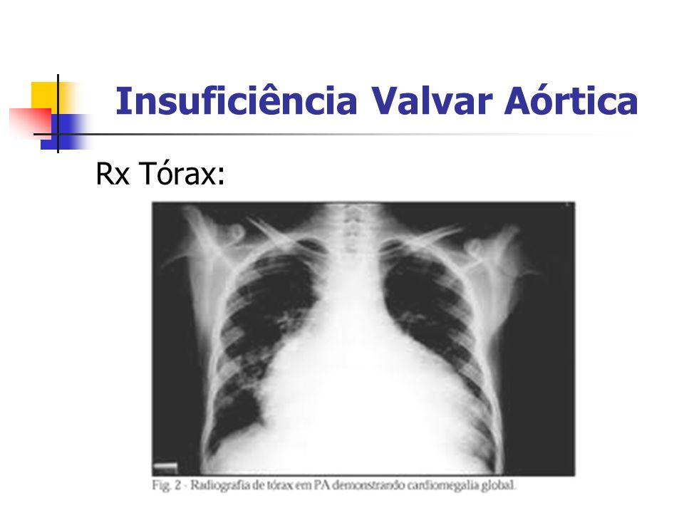 Insuficiência Valvar Aórtica Rx Tórax: