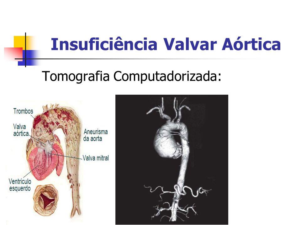 Insuficiência Valvar Aórtica Tomografia Computadorizada: