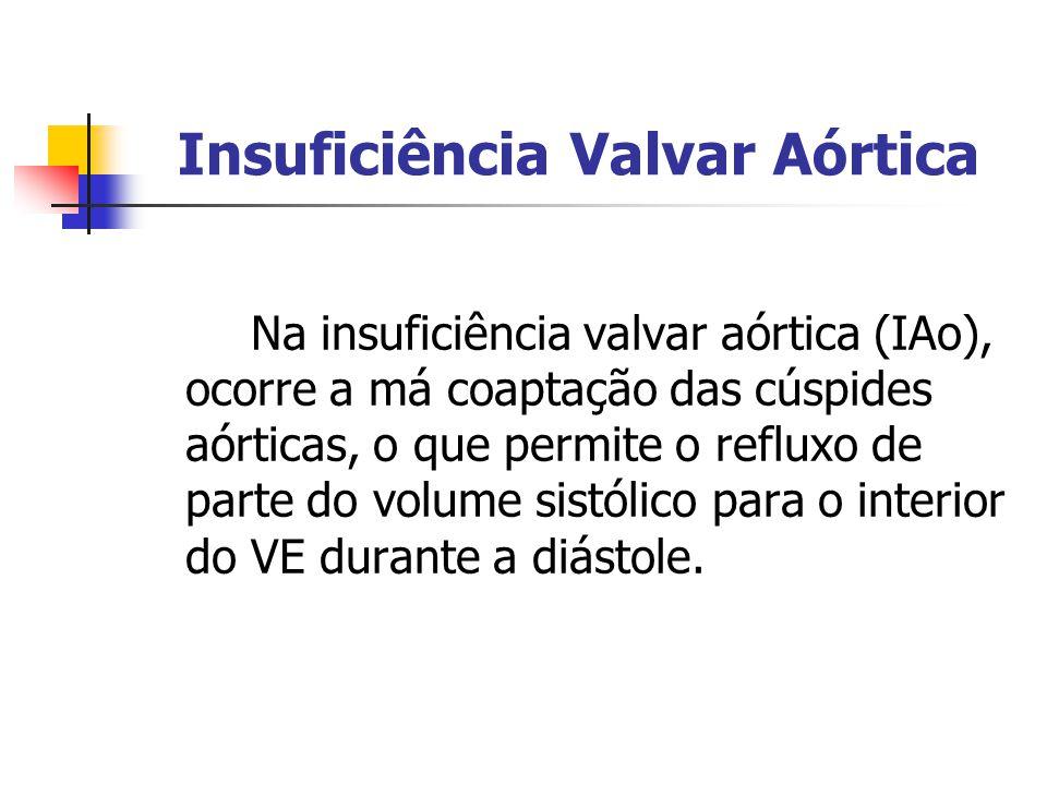 Insuficiência Valvar Aórtica Na insuficiência valvar aórtica (IAo), ocorre a má coaptação das cúspides aórticas, o que permite o refluxo de parte do v