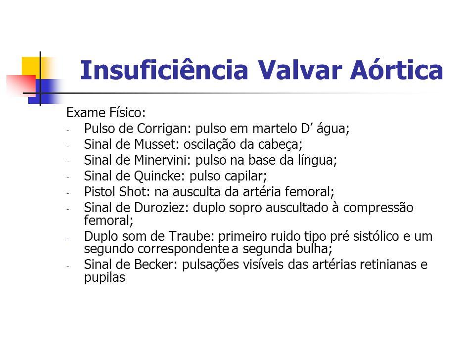 Insuficiência Valvar Aórtica Exame Físico: - Pulso de Corrigan: pulso em martelo D água; - Sinal de Musset: oscilação da cabeça; - Sinal de Minervini: