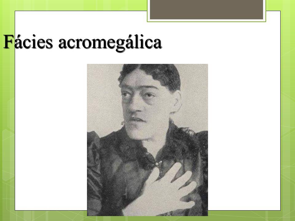 Fácies acromegálica