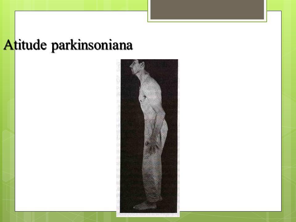 Atitude parkinsoniana