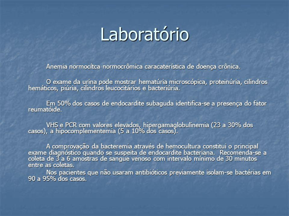 Laboratório Anemia normocítca normocrômica caracaterística de doença crônica. O exame da urina pode mostrar hematúria microscópica, proteinúria, cilin