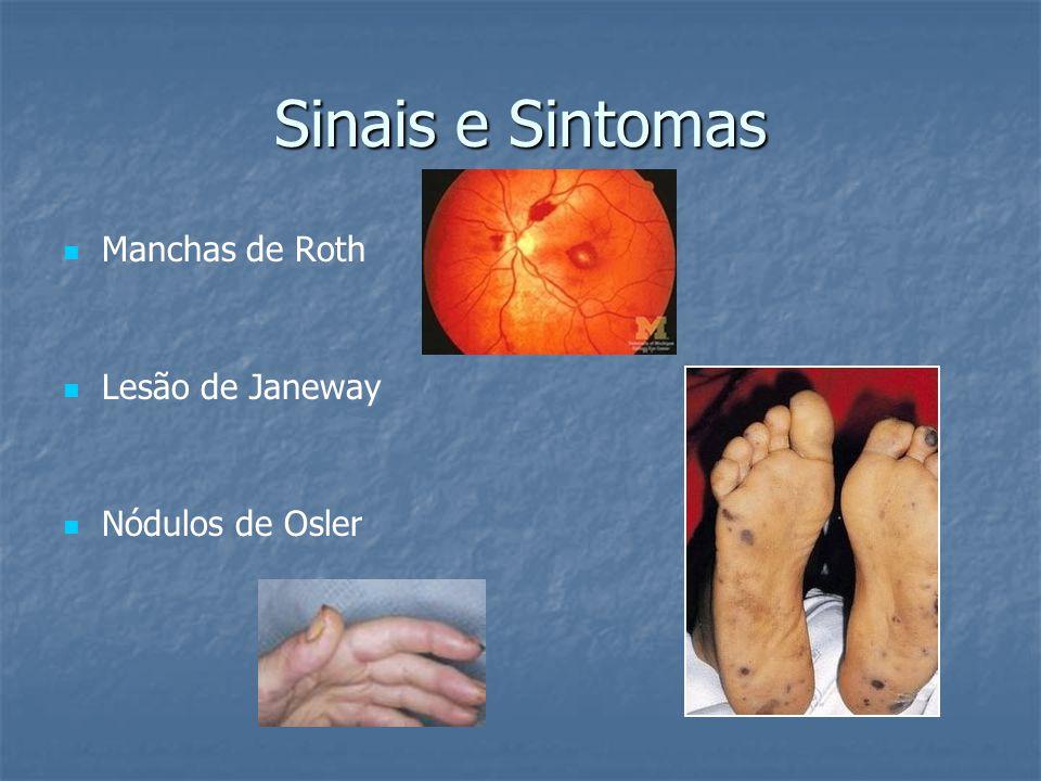 Sinais e Sintomas Manchas de Roth Lesão de Janeway Nódulos de Osler