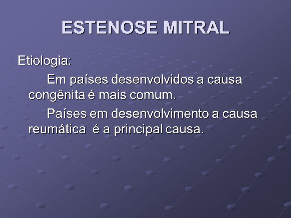 ESTENOSE MITRAL Classificação: Gradiente médio, mmHg Área Valvar, cm2 Pressão Arterial Pulmonar Sistólica, mmHg Normal04-6<30 Leve<5 1,5 - 4 <30 Moderada5-10 1 – 1,5 30 – 50 Grave>10<1>50