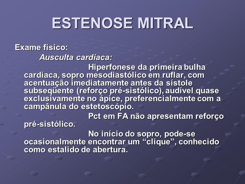 ESTENOSE MITRAL Portador de estenose mitral com sintomas leves (Classe II NYHA)