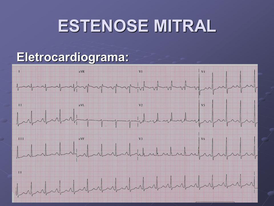 Eletrocardiograma: Manifestações de sobrecarga atrial esquerda, como onda P de maior duração (> 0,12 segundos em DII), entalhada, com uma fase negativa proeminente em V1 (> 0,1 mV).