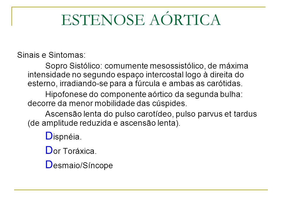 ESTENOSE AÓRTICA Sinais e Sintomas: Sopro Sistólico: comumente mesossistólico, de máxima intensidade no segundo espaço intercostal logo à direita do e