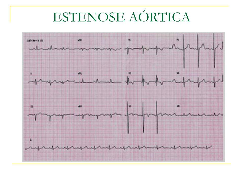 Ecodopplercardiografia: Representa o exame complementar mais importante nos portadores de EAo, permitindo a avaliação mais precisa da anatomia da valva, a quantificação do grau de estenose e da repercussão da EAo na anatomia e função do VE.