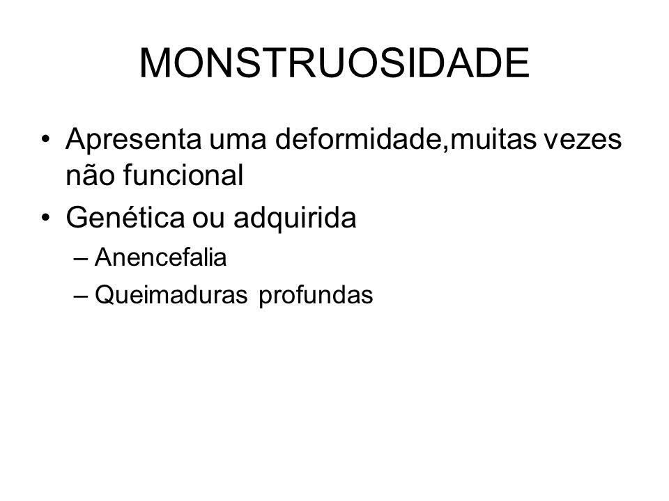 MONSTRUOSIDADE Apresenta uma deformidade,muitas vezes não funcional Genética ou adquirida –Anencefalia –Queimaduras profundas