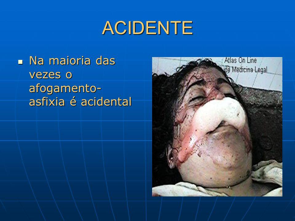 ACIDENTE Na maioria das vezes o afogamento- asfixia é acidental Na maioria das vezes o afogamento- asfixia é acidental