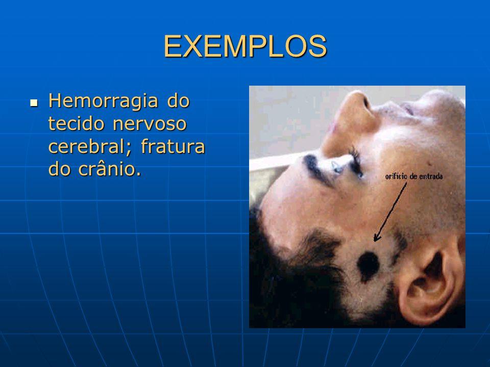 EXEMPLOS Hemorragia do tecido nervoso cerebral; fratura do crânio. Hemorragia do tecido nervoso cerebral; fratura do crânio.