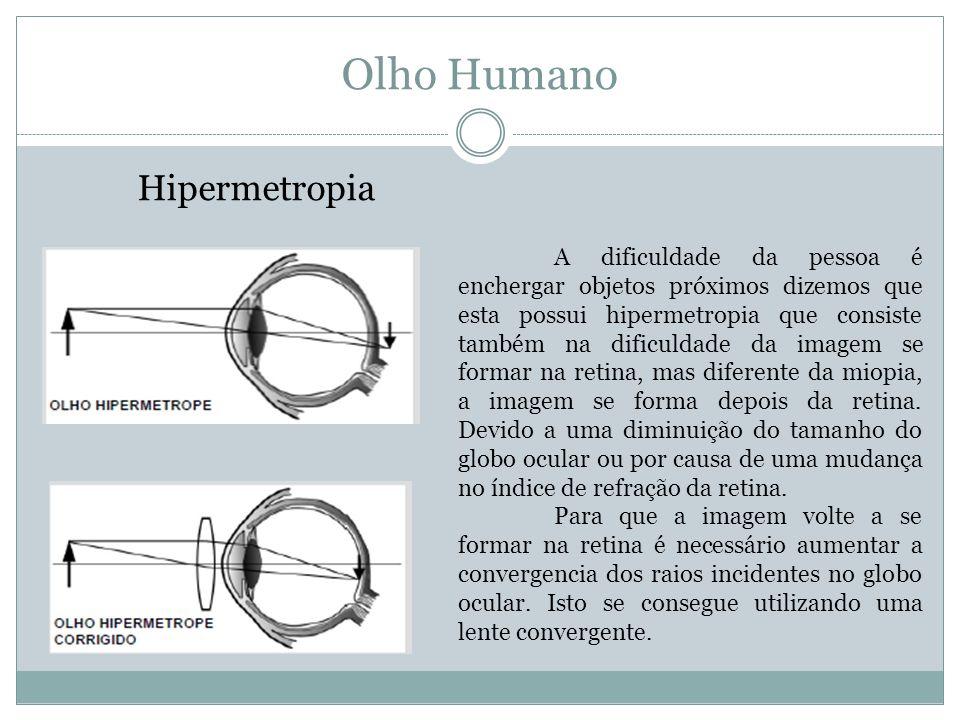 Olho Humano Hipermetropia A dificuldade da pessoa é enchergar objetos próximos dizemos que esta possui hipermetropia que consiste também na dificuldade da imagem se formar na retina, mas diferente da miopia, a imagem se forma depois da retina.