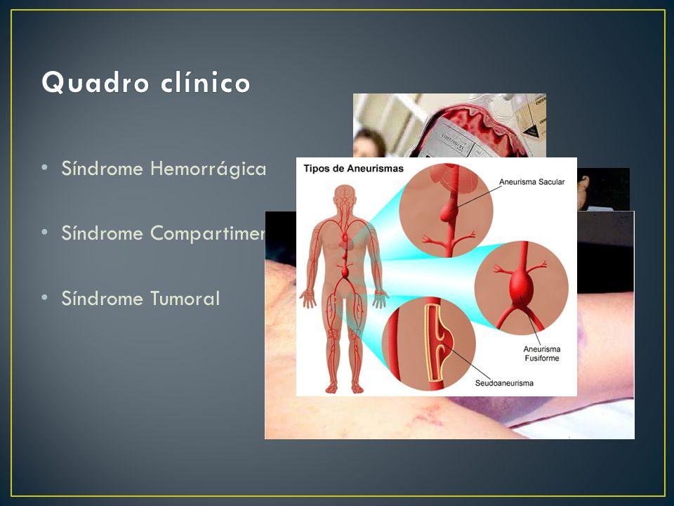Síndrome Hemorrágica Síndrome Compartimental Síndrome Tumoral
