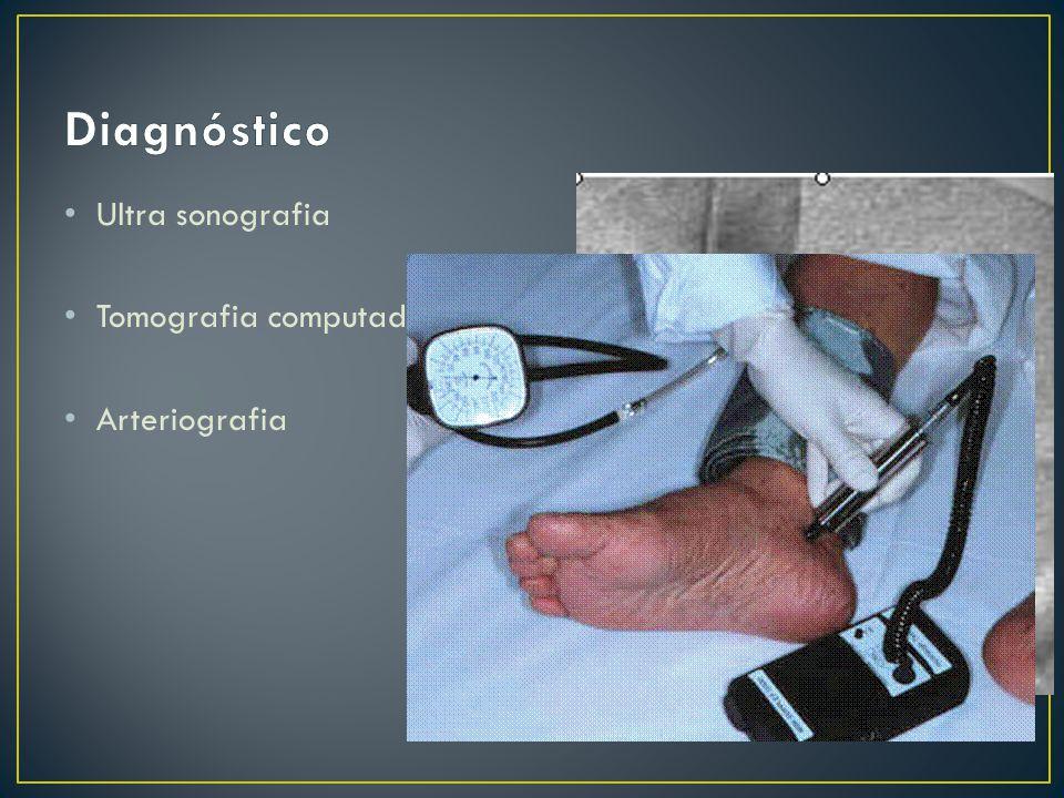 Ultra sonografia Tomografia computadorizada Arteriografia