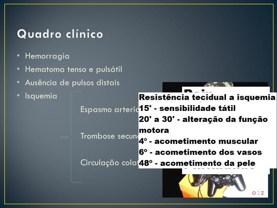 Hemorragia Hematoma tenso e pulsátil Ausência de pulsos distais Isquemia Espasmo arterial Trombose secundária Circulação colateral