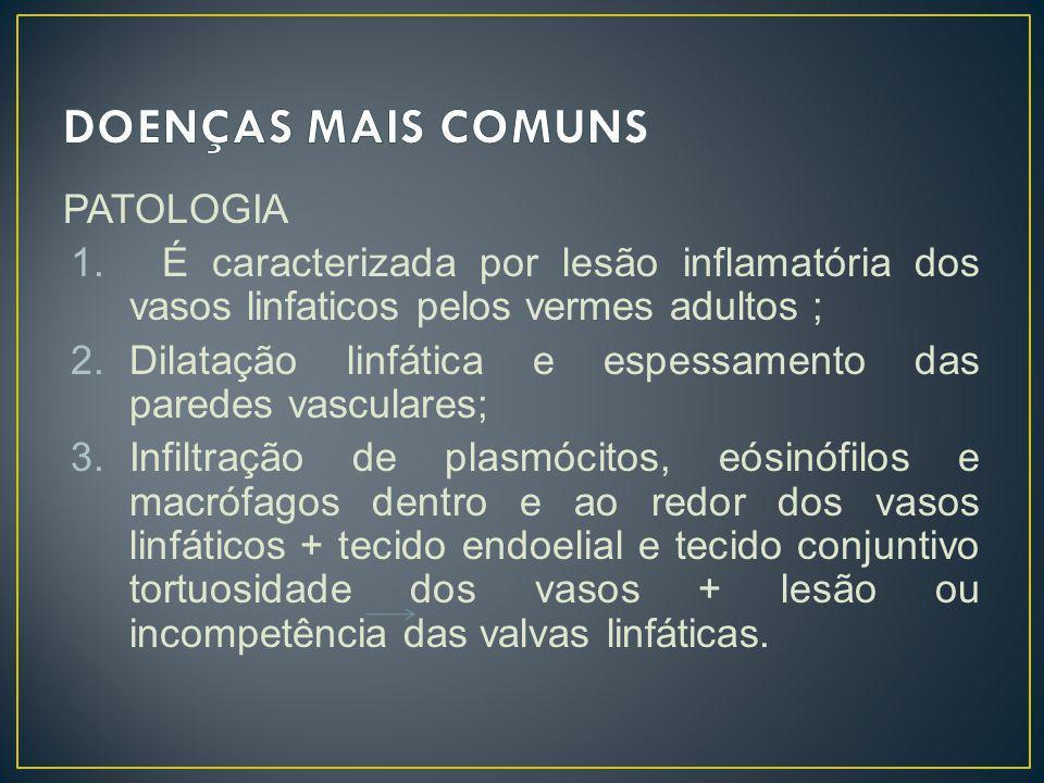 PATOLOGIA 1. É caracterizada por lesão inflamatória dos vasos linfaticos pelos vermes adultos ; 2.Dilatação linfática e espessamento das paredes vascu