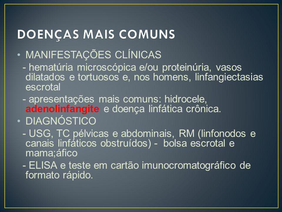MANIFESTAÇÕES CLÍNICAS - hematúria microscópica e/ou proteinúria, vasos dilatados e tortuosos e, nos homens, linfangiectasias escrotal - apresentações