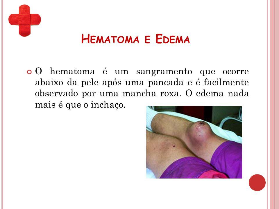H EMATOMA E E DEMA O hematoma é um sangramento que ocorre abaixo da pele após uma pancada e é facilmente observado por uma mancha roxa. O edema nada m