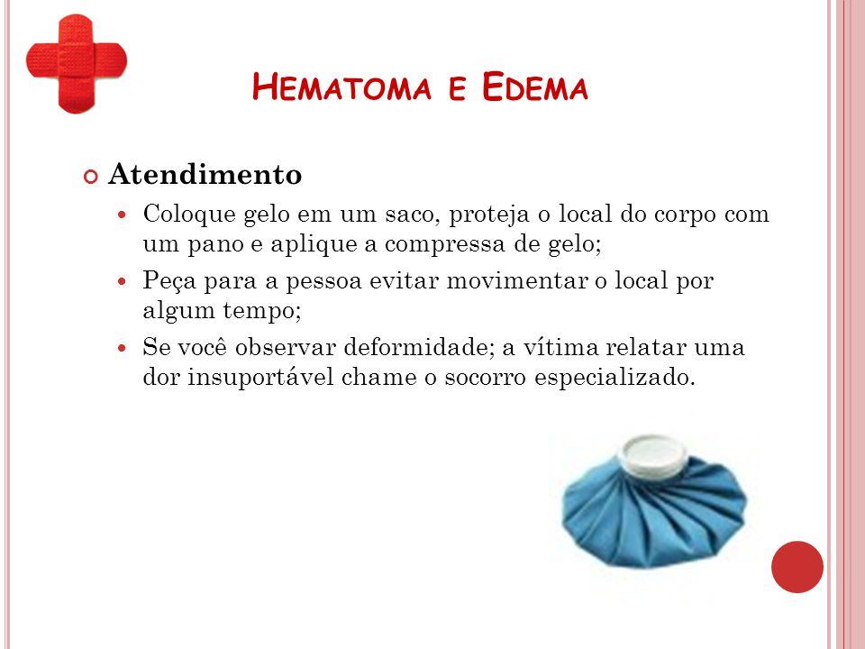 H EMATOMA E E DEMA Atendimento Coloque gelo em um saco, proteja o local do corpo com um pano e aplique a compressa de gelo; Peça para a pessoa evitar