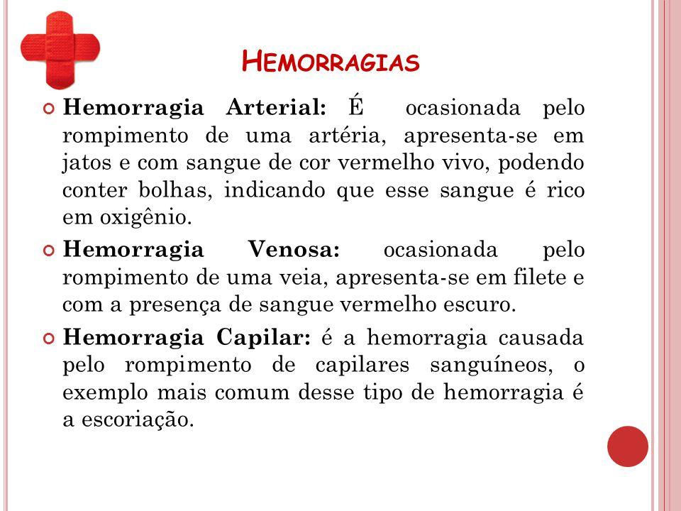 H EMORRAGIAS Hemorragia Arterial: É ocasionada pelo rompimento de uma artéria, apresenta-se em jatos e com sangue de cor vermelho vivo, podendo conter