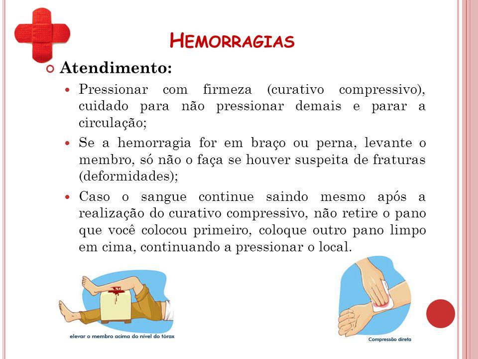 H EMORRAGIAS Atendimento: Pressionar com firmeza (curativo compressivo), cuidado para não pressionar demais e parar a circulação; Se a hemorragia for