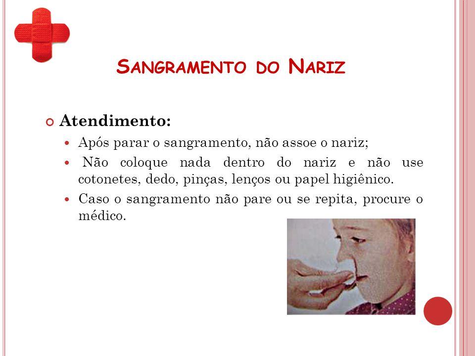 S ANGRAMENTO DO N ARIZ Atendimento: Após parar o sangramento, não assoe o nariz; Não coloque nada dentro do nariz e não use cotonetes, dedo, pinças, l