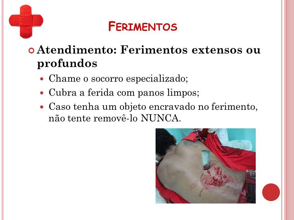 F ERIMENTOS Atendimento: Ferimentos extensos ou profundos Chame o socorro especializado; Cubra a ferida com panos limpos; Caso tenha um objeto encrava