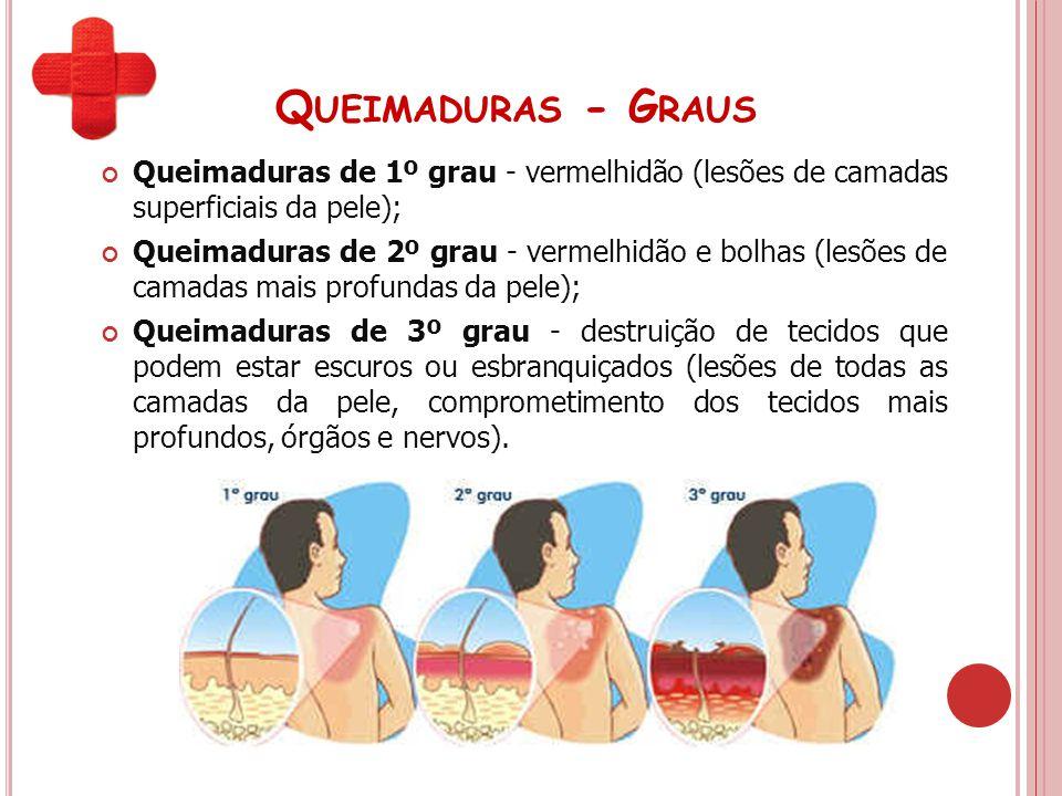 Q UEIMADURAS - G RAUS Queimaduras de 1º grau - vermelhidão (lesões de camadas superficiais da pele); Queimaduras de 2º grau - vermelhidão e bolhas (le