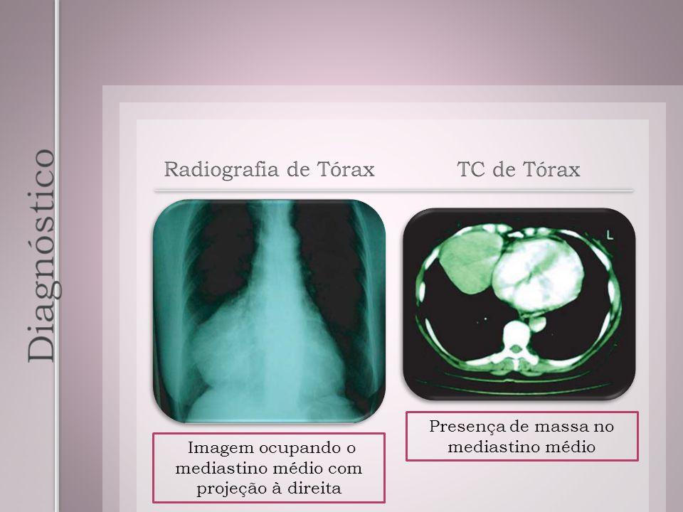 TC de Tórax Imagem ocupando o mediastino médio com projeção à direita Presença de massa no mediastino médio