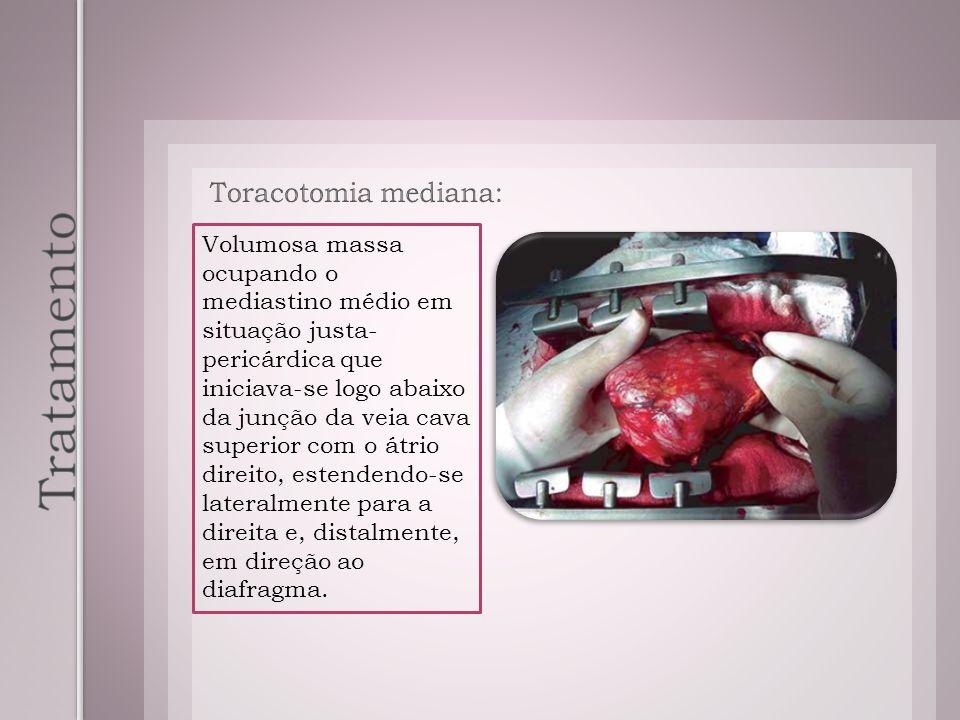 Toracotomia mediana: Volumosa massa ocupando o mediastino médio em situação justa- pericárdica que iniciava-se logo abaixo da junção da veia cava supe