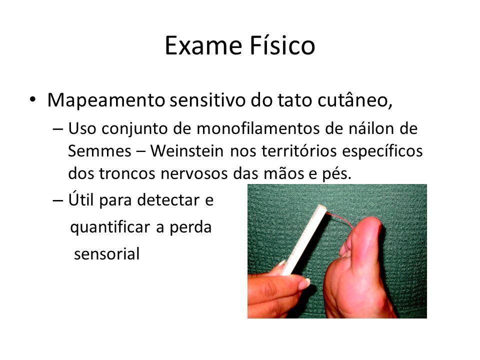 Exame Físico Mapeamento sensitivo do tato cutâneo, – Uso conjunto de monofilamentos de náilon de Semmes – Weinstein nos territórios específicos dos tr