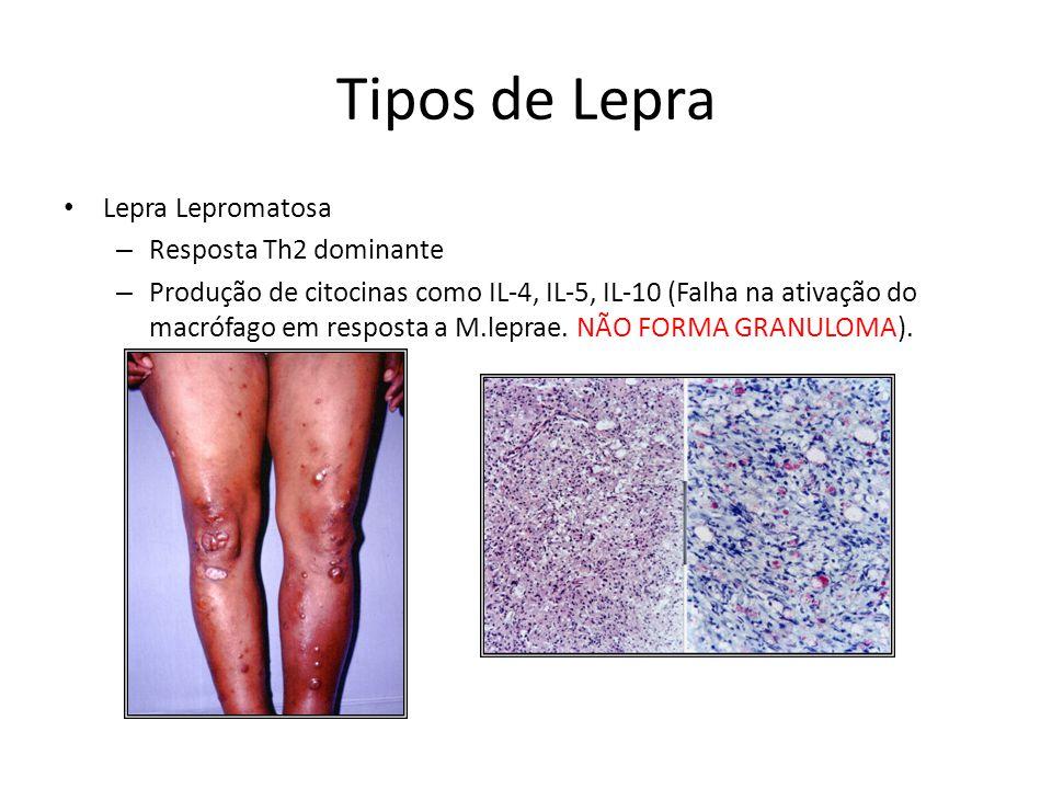 Tipos de Lepra Lepra Lepromatosa – Resposta Th2 dominante – Produção de citocinas como IL-4, IL-5, IL-10 (Falha na ativação do macrófago em resposta a