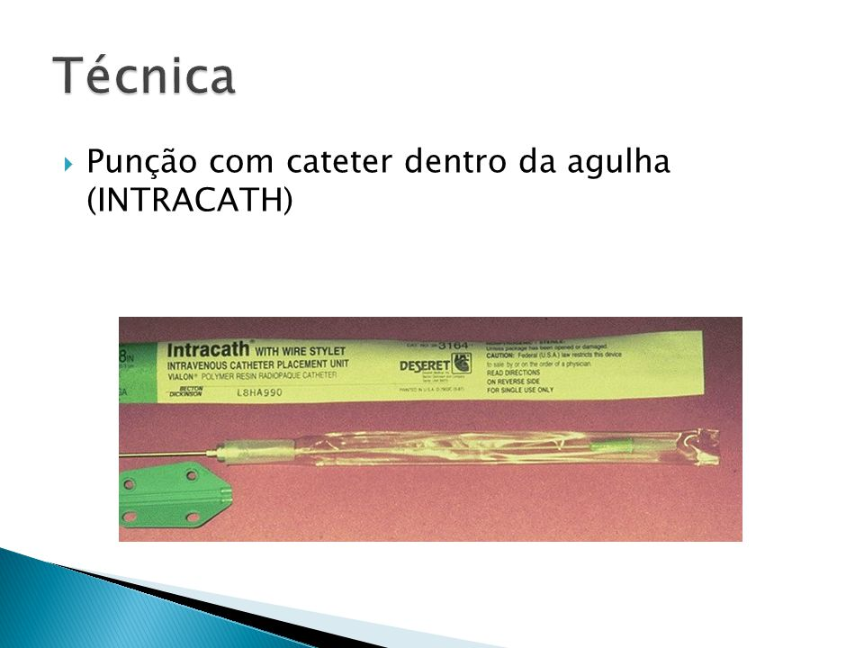 Punção com cateter dentro da agulha (INTRACATH)