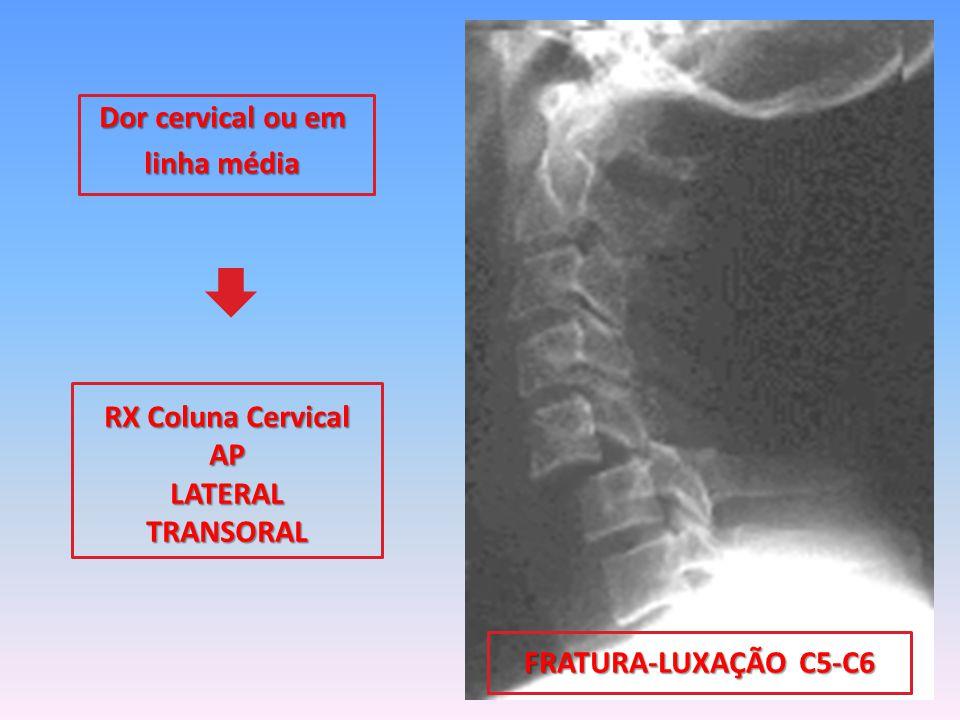 Dor cervical ou em linha média RX Coluna Cervical APLATERALTRANSORAL FRATURA-LUXAÇÃO C5-C6