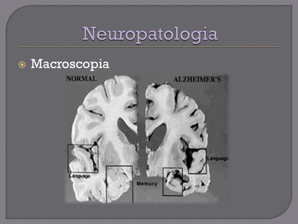 Macroscopia