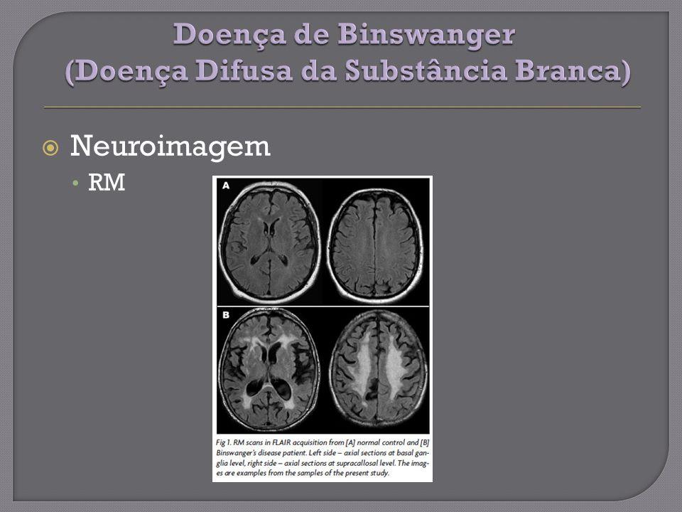 Neuroimagem RM