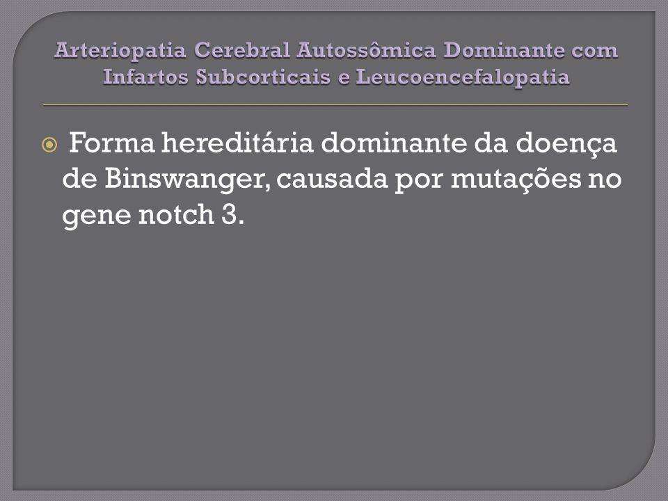 Forma hereditária dominante da doença de Binswanger, causada por mutações no gene notch 3.