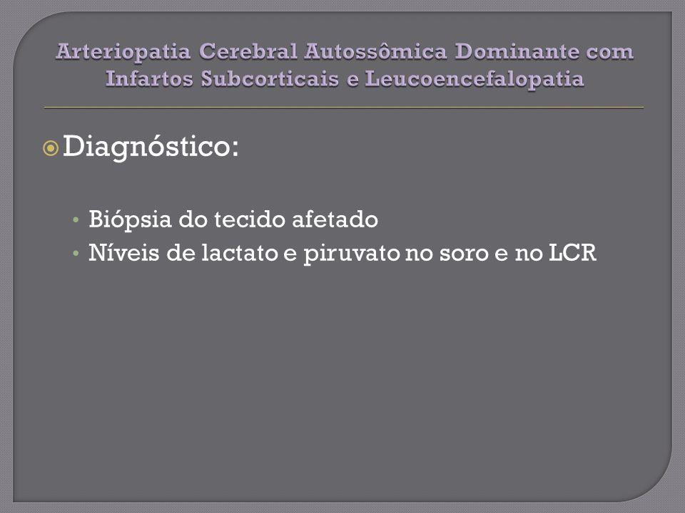 Diagnóstico: Biópsia do tecido afetado Níveis de lactato e piruvato no soro e no LCR