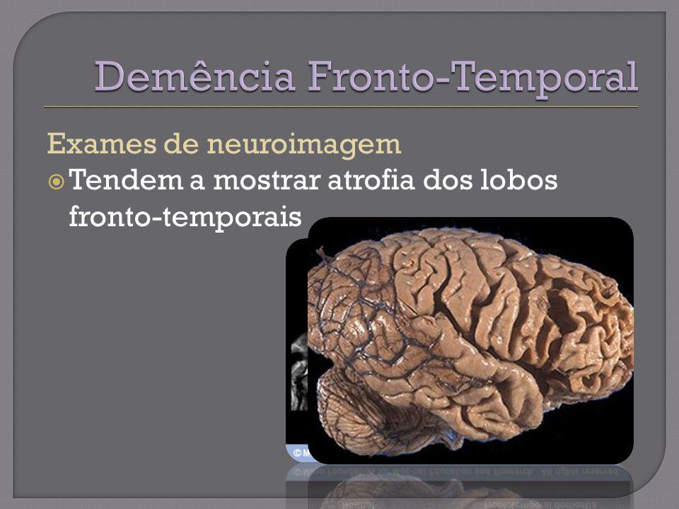 Exames de neuroimagem Tendem a mostrar atrofia dos lobos fronto-temporais
