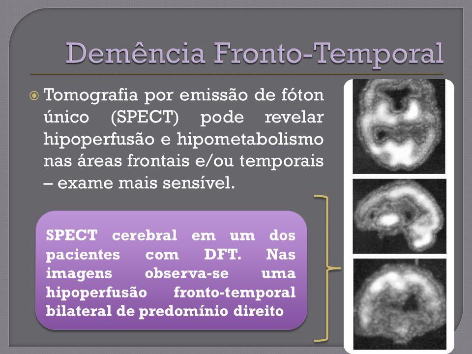 Tomografia por emissão de fóton único (SPECT) pode revelar hipoperfusão e hipometabolismo nas áreas frontais e/ou temporais – exame mais sensível.