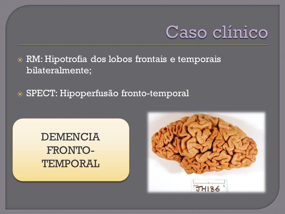 RM: Hipotrofia dos lobos frontais e temporais bilateralmente; SPECT: Hipoperfusão fronto-temporal DEMENCIA FRONTO- TEMPORAL