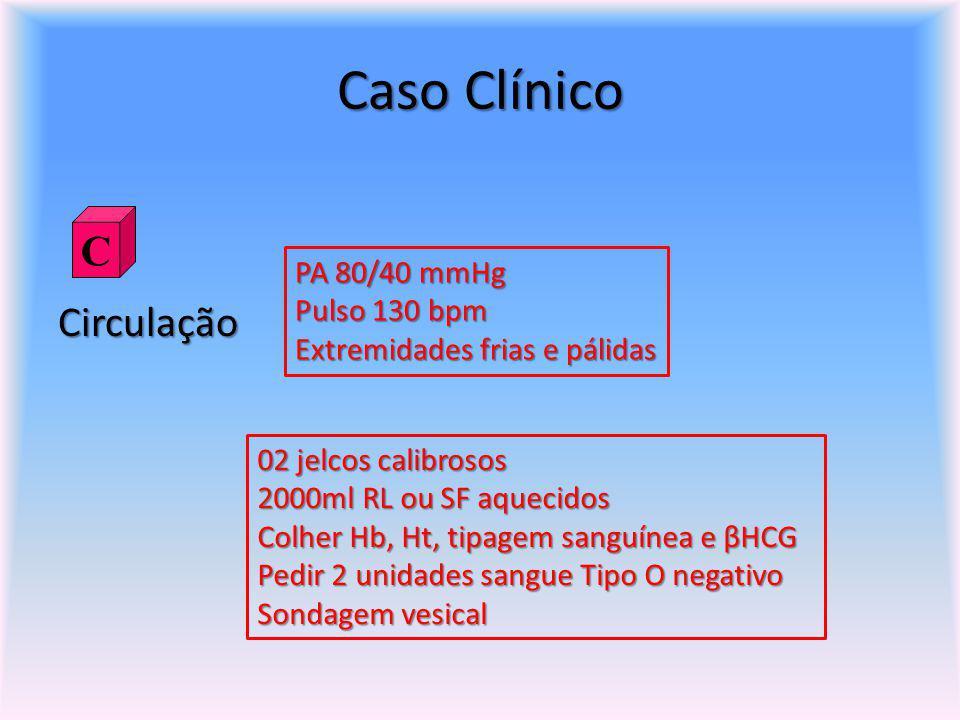 Caso Clínico Circulação PA 80/40 mmHg Pulso 130 bpm Extremidades frias e pálidas C 02 jelcos calibrosos 2000ml RL ou SF aquecidos Colher Hb, Ht, tipag